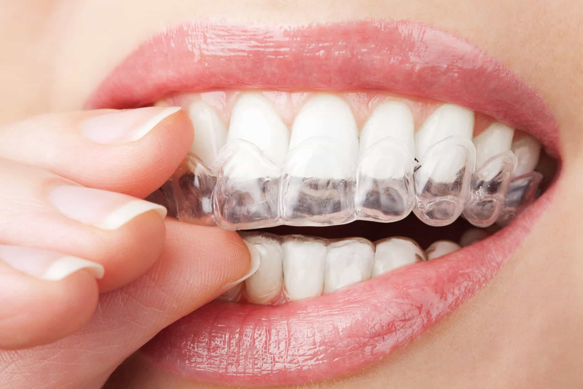 Clear-aligner ADOLESCENT TREATMENT